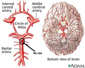 image of the Circle of Willis
